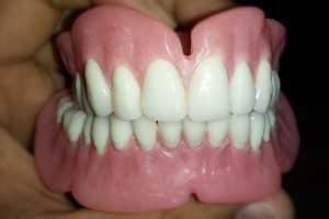 Designer Dentures Nz New Zealand Aucklands leading denture and dental business clinic practice south cheap affordable qaulity top safe teeth mouthguard custom