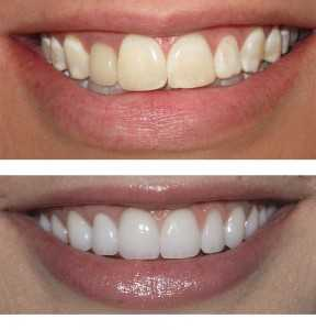 +cost of +dentures, +denture +repair +auckland, +dentures +auckland, White Smile, Teeth whitening, whiter smile, younger smile, nicer looking teeth, dentist whitening, dentist tooth whitening, safe tooth whitening, whiter teeth, whitest smile, nicest smile, white smile