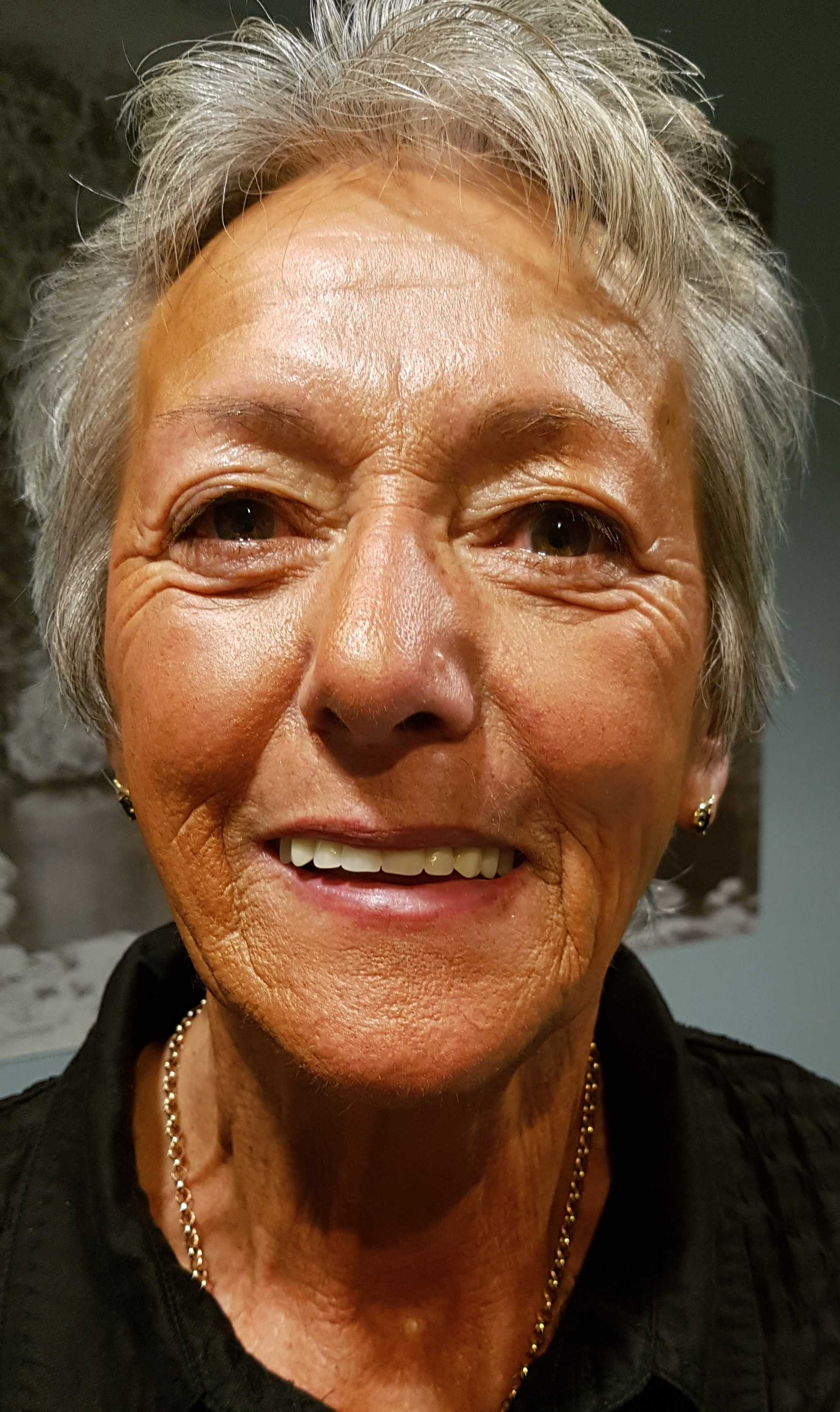 Full Dentures Create Beautiful New Smile right here in Auckland