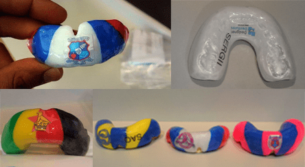 Auckland's Number 1 Customized Mouthguards for Sports